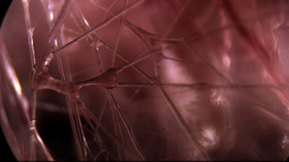 tissu conjonctif